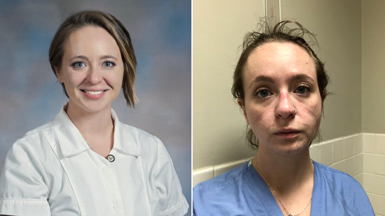 A COVID Nurse Shares Before & After Photos Depicting The Toll Months Of Working Has Taken