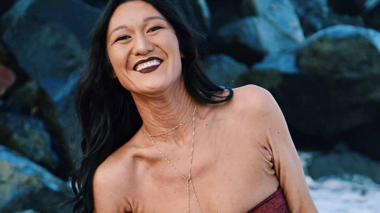 Une mannequin de 26 ans avec une rare maladie de peau transmet un message inspirant